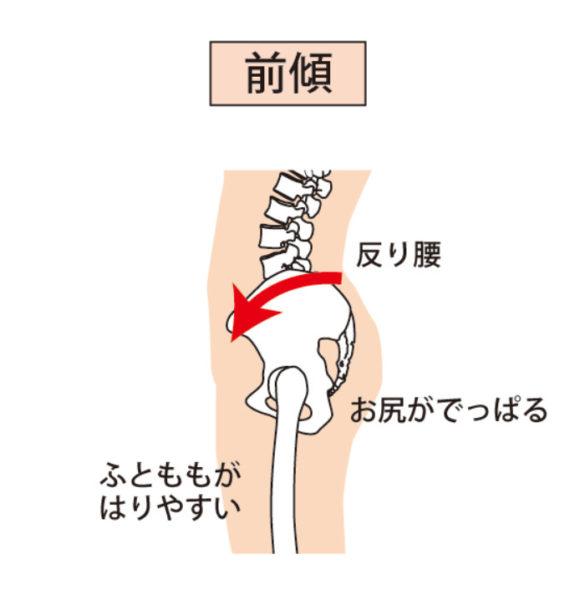 骨盤前傾による反り腰