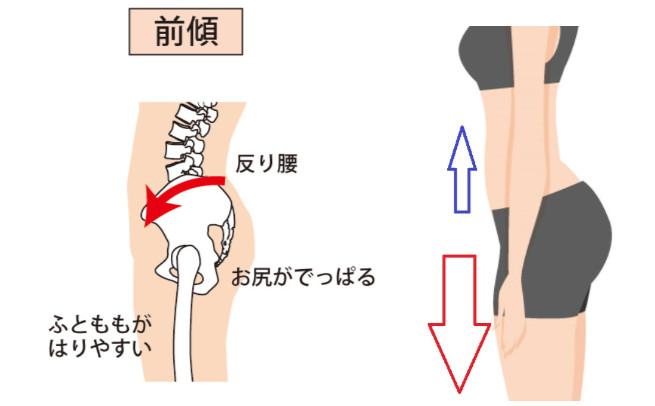 骨盤の角度と筋力バランス