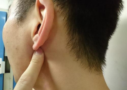 耳下腺マッサージ