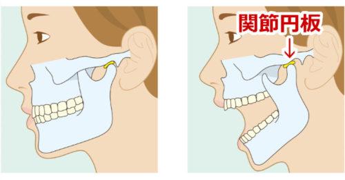 顎の関節円板