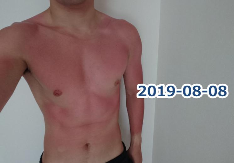 日焼けが痛くて筋トレできない…日焼け時に食べるべき栄養