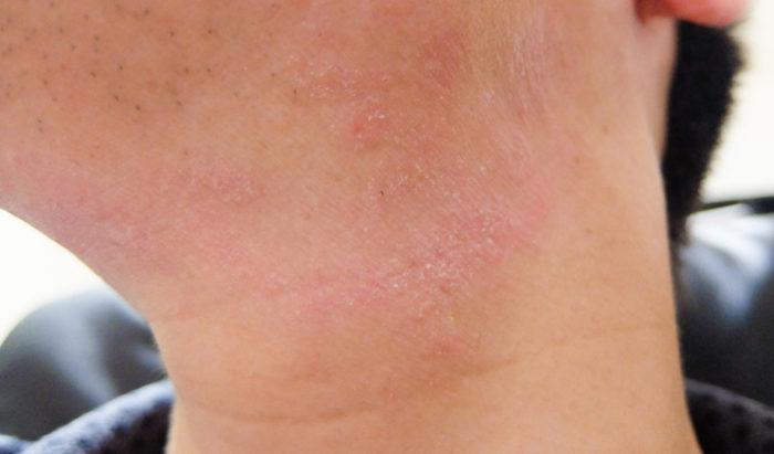 首元のアトピー肌