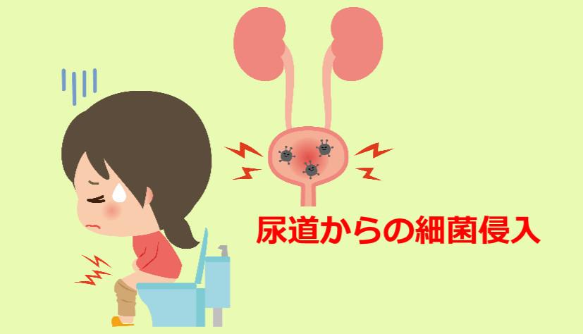 膀胱炎の原因