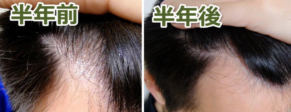 青汁の育毛効果ビフォーアフター