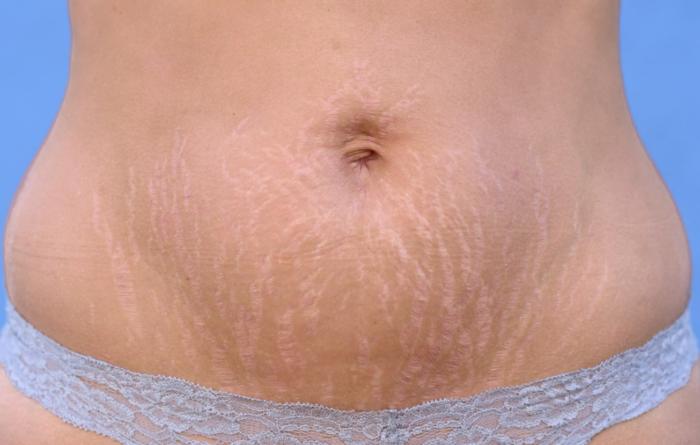 女性の妊娠線